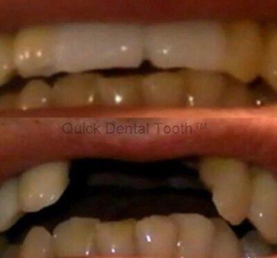 2 x Provisorischer Zahnersatz Zahn Reparatur Aktionspack !!