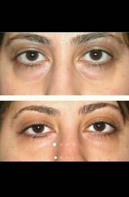 Baggy saggy dark circles under eye puffy remover bags