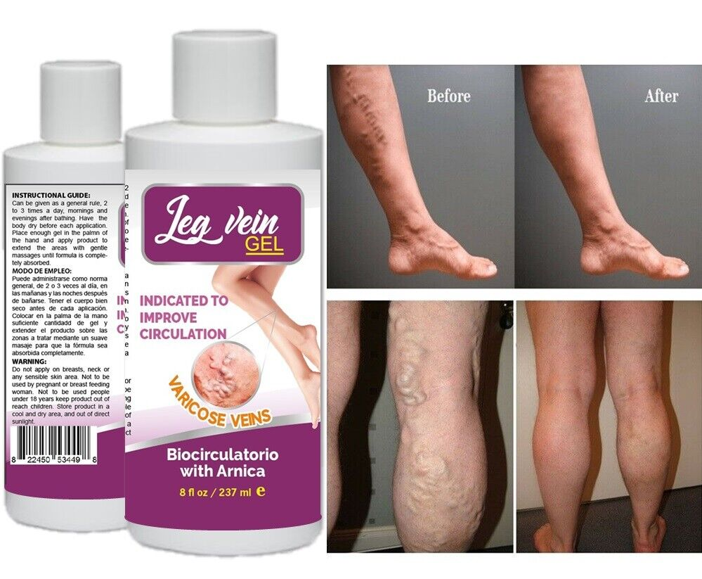 Medicine Herbal Ointment Varicose Veins Vasculitis Treatment Foot Care Cream USA