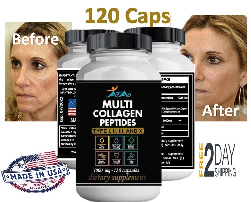 #1 Pastillas Vitaminas De Colageno Para Ayudar A Rejuvenecer Evitar Las Arrugas