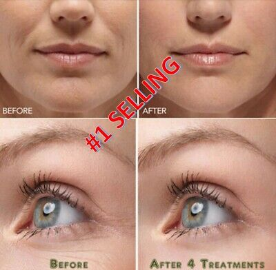 Best 100%  Under Eye Cream - Remove Dark Circles Wrinkles Face Lines Puffy
