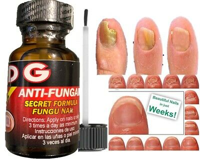 Hongo Zana las uñas enfermas nail fungus quick tratamiento para hongos quick 1oz