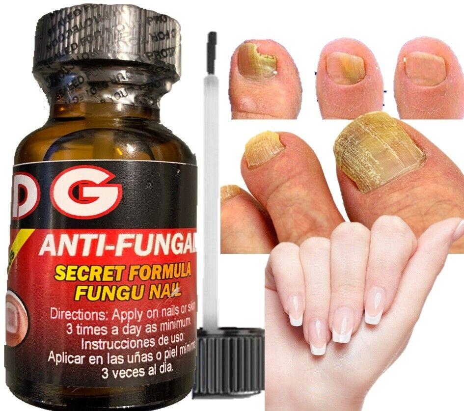 HONGO SAN DG Premium Anti-Fungal Anti-Infectious Liquid / Hongos de Uñas y Pies 3
