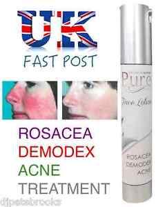 PURE Face Lotion ROSACEA TREATMENT - Demodex Zinc Oxide Sulphur Liquid Cream