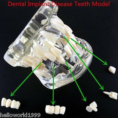 1pc Dental Analysis Implant Crown Disease Teeth Model With Restoration Bridge