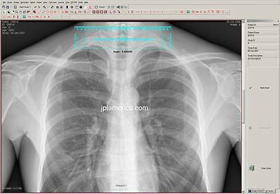 Pacs Radiology Software