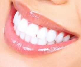 ** LASER TEETH WHITENING UK ** DO YOU HAVE A SPECIAL OCCASION OR JUST WANT TO LOOK FABOULOUS ??? **