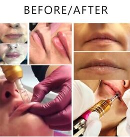 Needle free lip & body filler kit