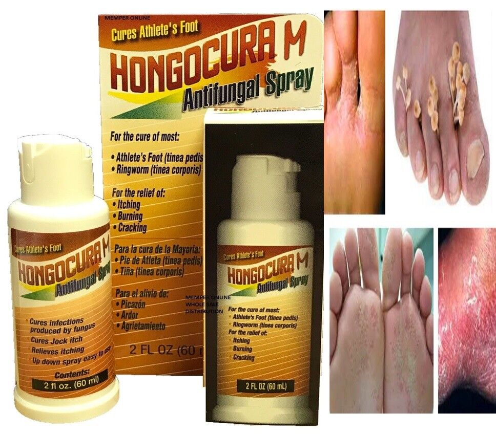 Athlete's Foot,Ringworm,Scabies spray Antifungal 2oz Tumba Hongos For fungus