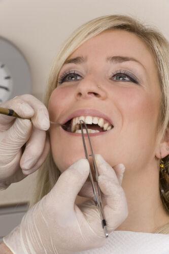 Für das besonders strahlende Lächeln: Zahnschmuck online erwerben