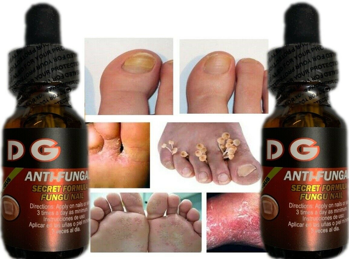 Fungi Athlete's Foot Antifungal Treatment Jock Itch Ringworm Itching Anti Fungus