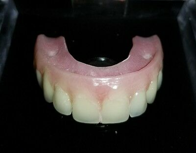 No Pallet Maxillary Implant Overdenture Model Upper Dental All On 5 Demonstrate