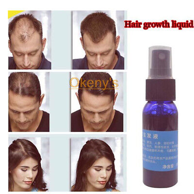 Okeny's Brand Yuda Pilatory Stop HairLoss Fast Hair Growth Spray Liquid //@@ for sale  Shipping to Nigeria
