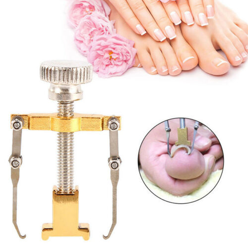 Useful Cervical Orthotic Ingrown Toe Nail Corrector Toenail Fixer Foot Care CA