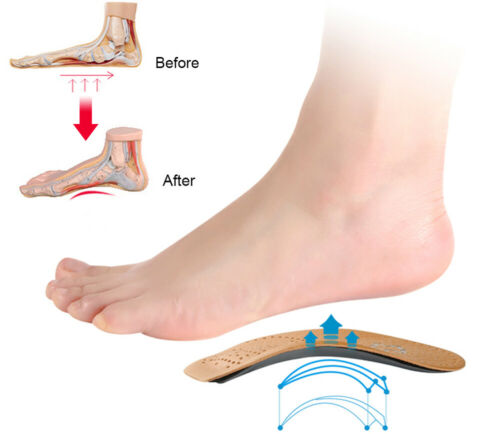 arch support orthotic shoe insoles inserts plantar
