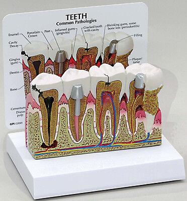Dental Human Tooth Teeth Anatomical Model Oversized Anatomy Model Us Stock