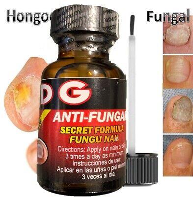 Hongo Zana las uñas enfermas nail fungus quick tratamiento para hongos quick 1oz 3