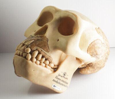 Rare Somso Homo Erectus Modjoketensis Skull Anatomical Model Anatomy Vintage