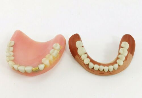 Vintage False Teeth Dentures Top Bottom Antique Dentistry Gold? Tooth Untested