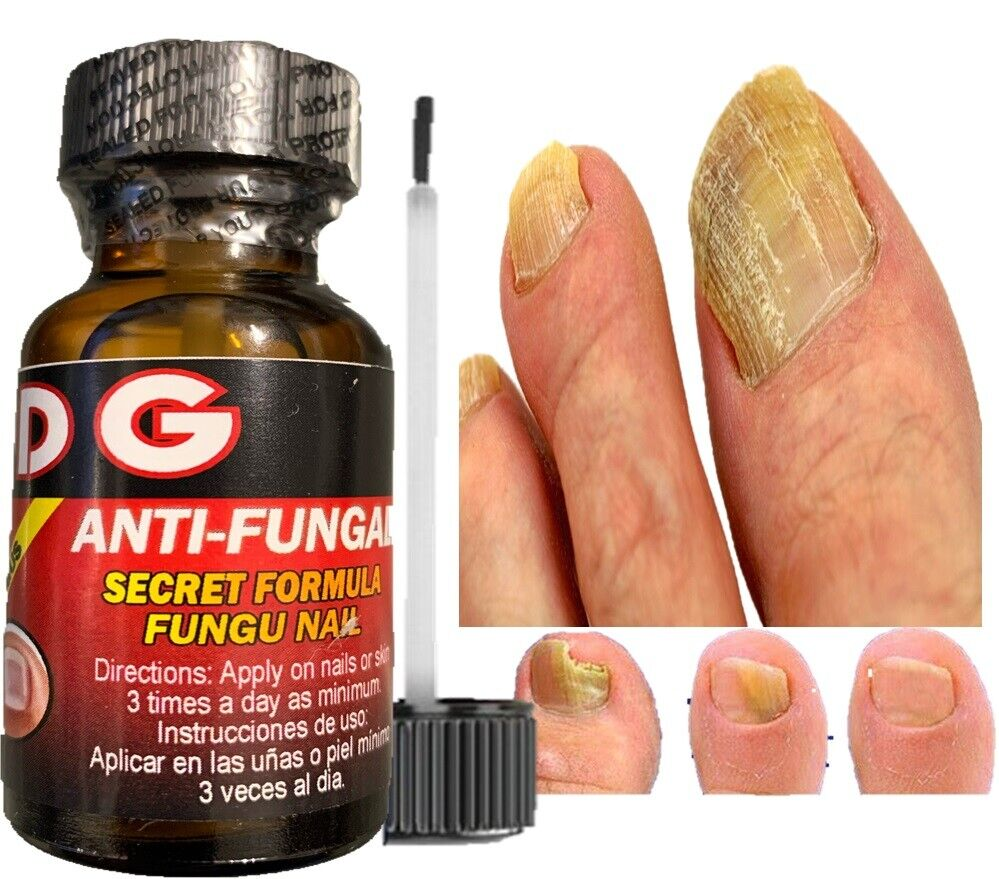 HONGO SAN DG Premium Anti-Fungal Anti-Infectious Liquid / Hongos de Uñas y Pies