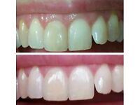 Tooth whitening in 15ml trial