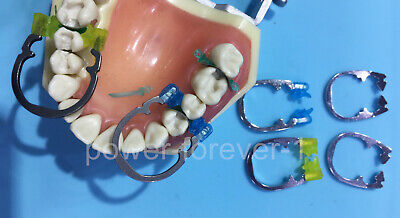 Ztdental Dental Sectional Matrix Installation Matrices Ring Standard Powerful