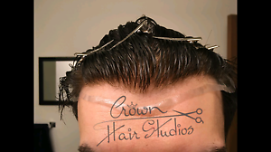 Hair Replacement High quality non surgical solution!   Quiff & Co Mosman Mosman Area Preview