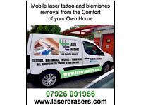 Mobile laser tattoo removal