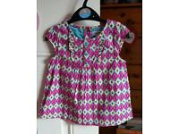 Aged 2/3 years patterned top