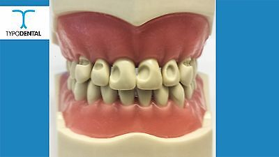 Dental Typodont Model 860 Cavity Teeth Fits Columbia Brand Removable Teeth