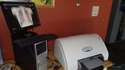 Chiropractic Digital Xray Cr Reader With Warranty Nucca Software X-ray