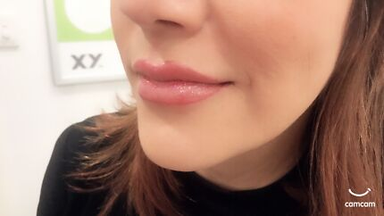 Anti-wrinkle Injections $2.99 Unit/ 1 mil lip fillers 399$.