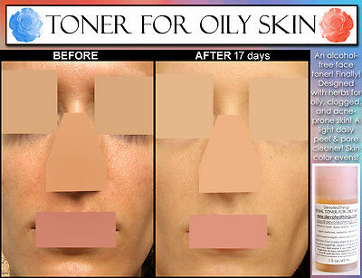 2 Before and After pics Best Natural Alcohol Free Face Toner For Oily Skin (Best Natural Skin Care Products For Oily Skin)