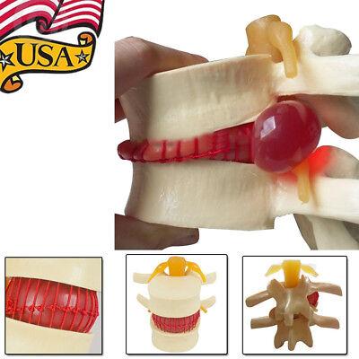 11.5 Medical Lumbar Spine Model Disc Herniation Demonstration Soft Elastic Disc