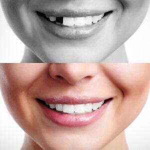 Temporary Tooth Repair Kit Temp Dental Repair Replace Missing DIY Make 12 Teeth