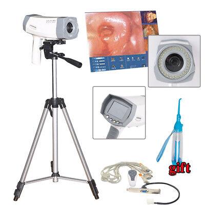 Digital 800000 Pixels Electronic Colposcope Sony Camera Tripod For Gynecology Us