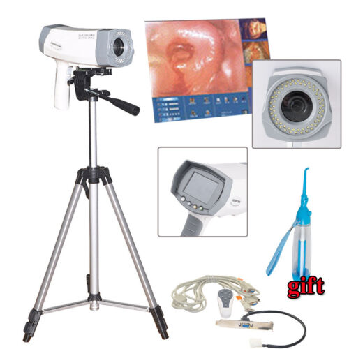 Digital 800000 pixels Electronic Colposcope SONY Camera Clear Image with Tripod