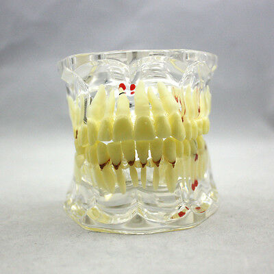 New Dental Study Tooth Transparent Adult Pathological Teeth Model
