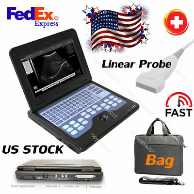 Linear Probe Portable Ultrasound Scanner Laptop Machine 10.1 Cms600p2 Usbvideo