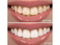Teeth Whitening/ Brightening- Guaranteed Results