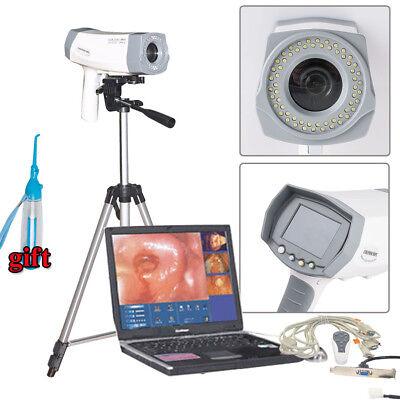 14 Inch Ccd Digital Electronic Colposcope Sony Camera 800000 Pixels W Tripod