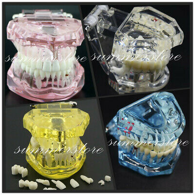 Dental Ortho Teaching Study Disease Implant Teeth Model With Restoration Bridge