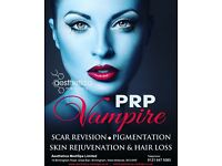 PRP VAMPIRE - SKIN & HAIR LOSS TREATMENT