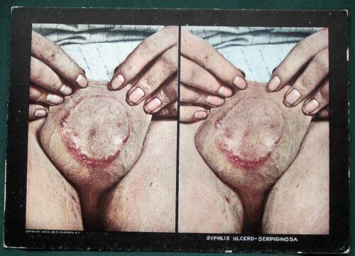 SYPHILIS Scrotum Sores - orig 1910 Skin Disease Medical Stereoview Photo