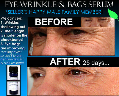 2 Before and After pics Under Eye Bags Best Wrinkle Remover Puffiness Bag Serum (Best Vegan Skin Care Line)