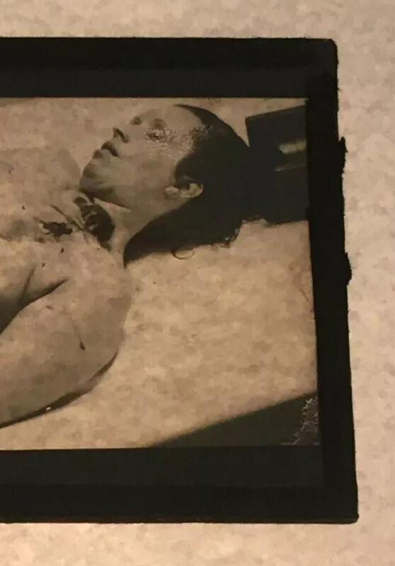 Vintage LeMoyne Snyder Forensic Homicide Investigation GLASS SLIDE #6