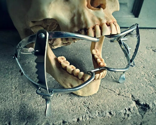 Medical Mouth Gag, Mouth Spreader, Vintage Medical Style, Oddities, Curiosities