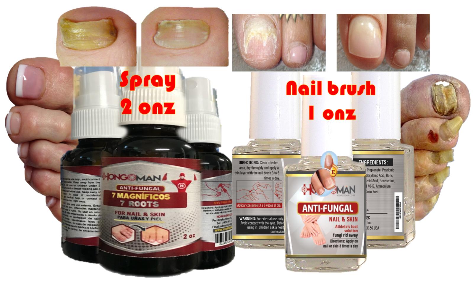 Hongo 2 man productos para eliminar hongos en uñas y en pies LOS ORIGINALES nail