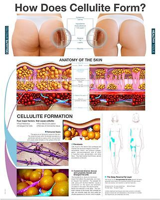 Skin Layer Cellulite Anatomy Poster 18 X 24