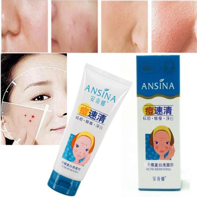 Acne Scars Remover Deep Clean Face Wash Cream Whitening Facial Skin Cleanser S